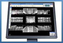 Digital Dental X-rays Meriden CT