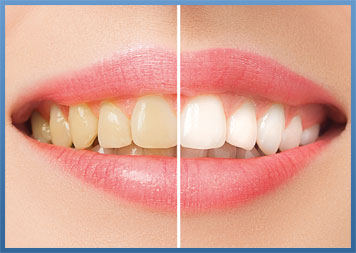 Teeth Whitening Dentist Meriden CT